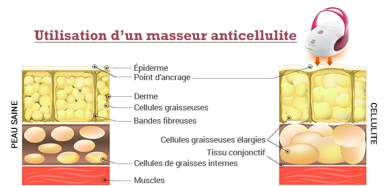 infographie presentant le masseur anticellulite silkn et ses effets