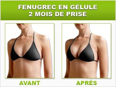 image effets du fenugrec avant apres sur la poitrine d'une femme