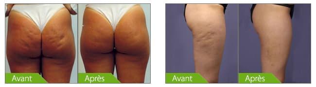 quatre photos de jambes avec de la cellulite avant après