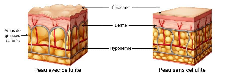 infographie montrant la différence entre un peau cellulitée et une peau non cellulitée