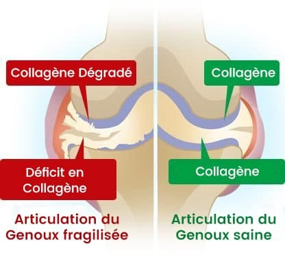 image presentant la difference entre une articulation ayant du collagene degradé et une autre avec du collagene normal