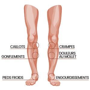 Graphiques des jambes indiquant divers problèmes pouvant survenir dans les jambes